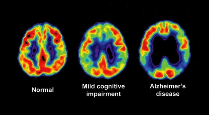 What an Alzheimer's Prevention Clinic Director Recommends to Cut Your Risk